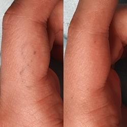 Полное удаление тату оренбург